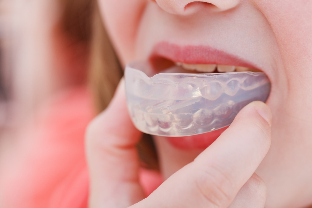 women wearing orthodontic silicone mouthguard